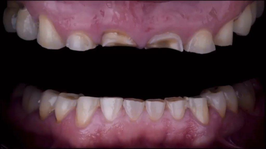 بازسازی کامل دهان با استفاده از تزریق کامپوزیت فلو
