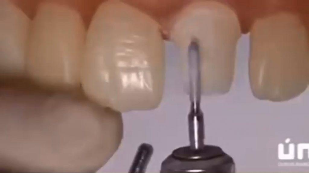 تراش دندان سانترال برای ساخت روکش