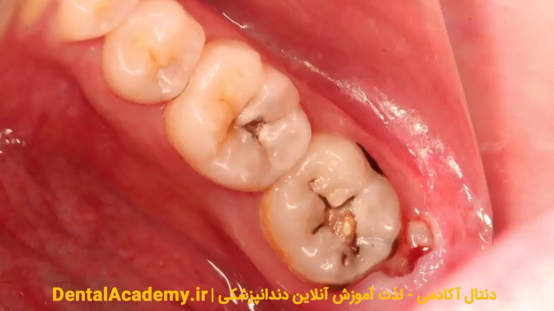 ترمیم دندان خلفی با کامپوزیت