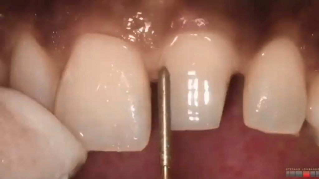تراش دندان با تکنیک chamfer