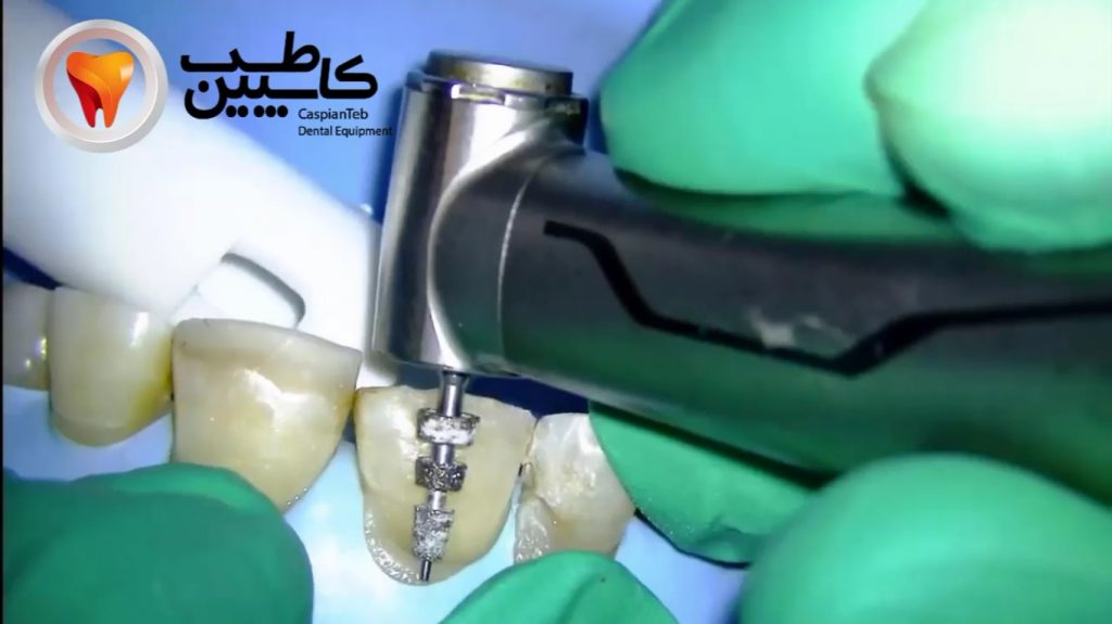 آماده سازی و تراش دندان برای لمینیت