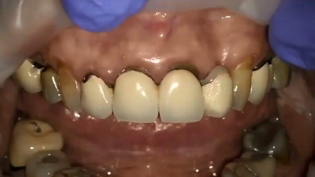 افزایش طول تاج و بازسازی دندانها