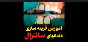 آموزش قرینه سازی دندانهای سانترال