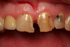 کامپوزیت ونیر 3 دندان قدامی