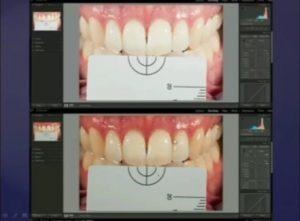 انتخاب رنگ در دندانپزشکی