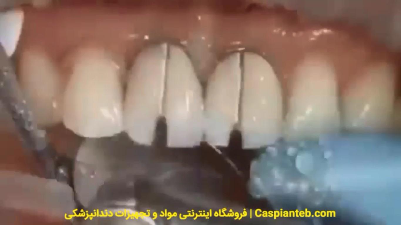 تعویض روکش های قدیمی دندان سانترال